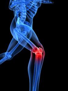 bei-knieproblemen-wird-oft-arthroskopiert-doch-der-eingriff-bringt-offenbar-wenig-